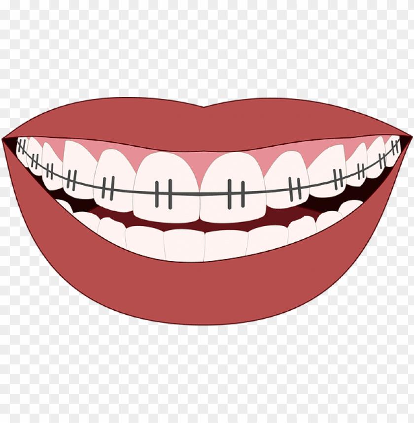 orthodontics, smile, teeth, dentist - mouth braces