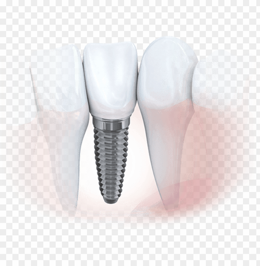 free PNG animation of implant supported dental crown - dental implant PNG image with transparent background PNG images transparent