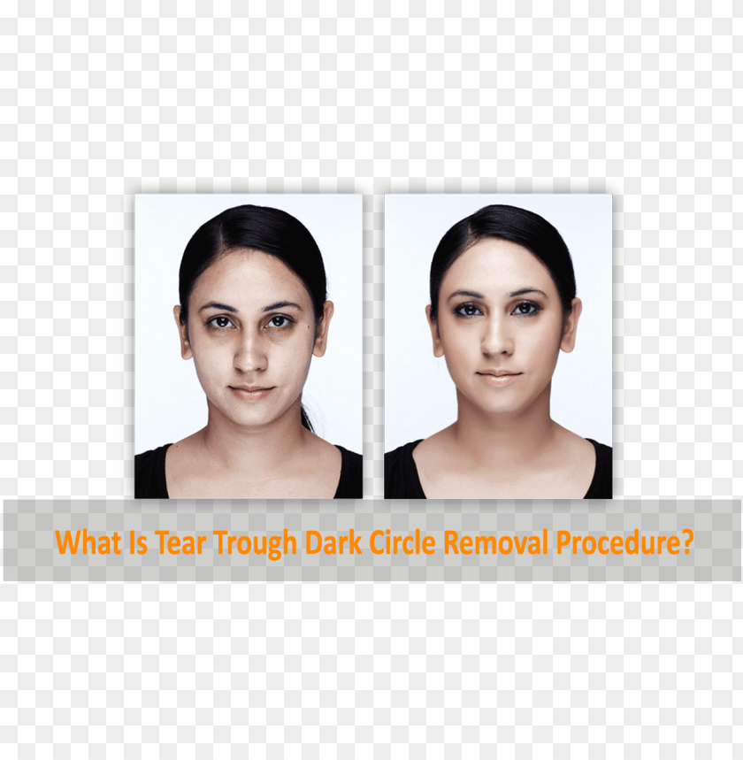 free PNG dark circle eye roller before and after PNG image with transparent background PNG images transparent